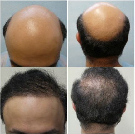 Hair Transplant Before & After Images | Hair treatment before & After images