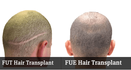 Hair Transplant in Chandigarh | hair transplant in punjab, best hair transplant in chandigarh, hair transplant in chandigarh,