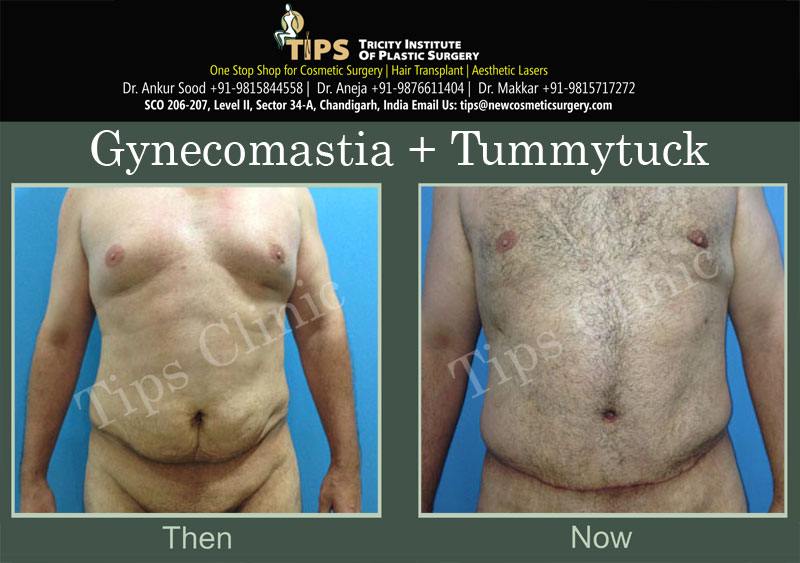 Gynecomastia before & After pictures