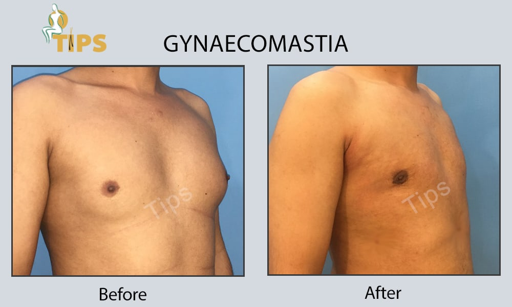 Gynaecomastia surgery before & after pictures