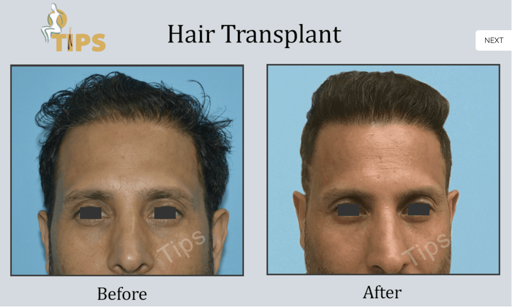 best hair transplant in Chandigarh, hair transplant in Punjab, hair transplant in Chandigarh
